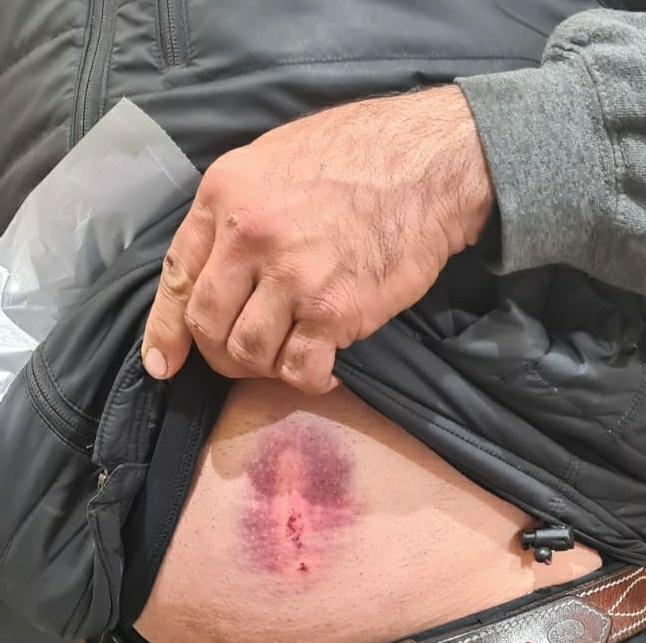 בעלים של כלב מסוכן מסוג פיטבול שיסה את כלבו בפקח של השירות הווטרינרי, בזמן שטיפל בתלונה על כלב משוטט בחצור הגלילית